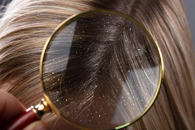 למה קשקשים בשיער הם מטרד כה גדול?