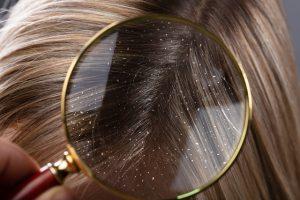 קשקשים בשיער